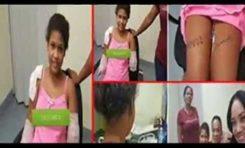 Fundación niega retirara apoyo en EEUU a niña dominicana mutilada; aclara nunca se le prometió prótesis robótica