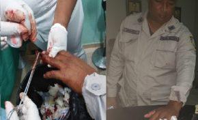 Comandante PN de Río San Juan es herido a machetazos por miembro Batallón Comunitario a quien fue a detener